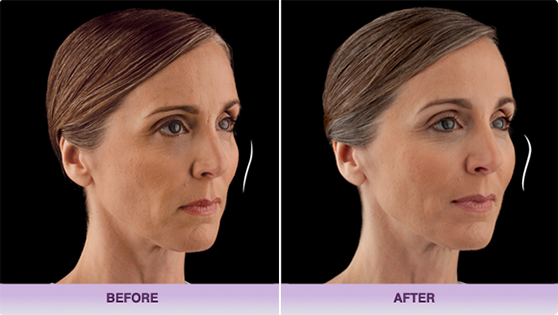juvederm voluma xc beforeafter